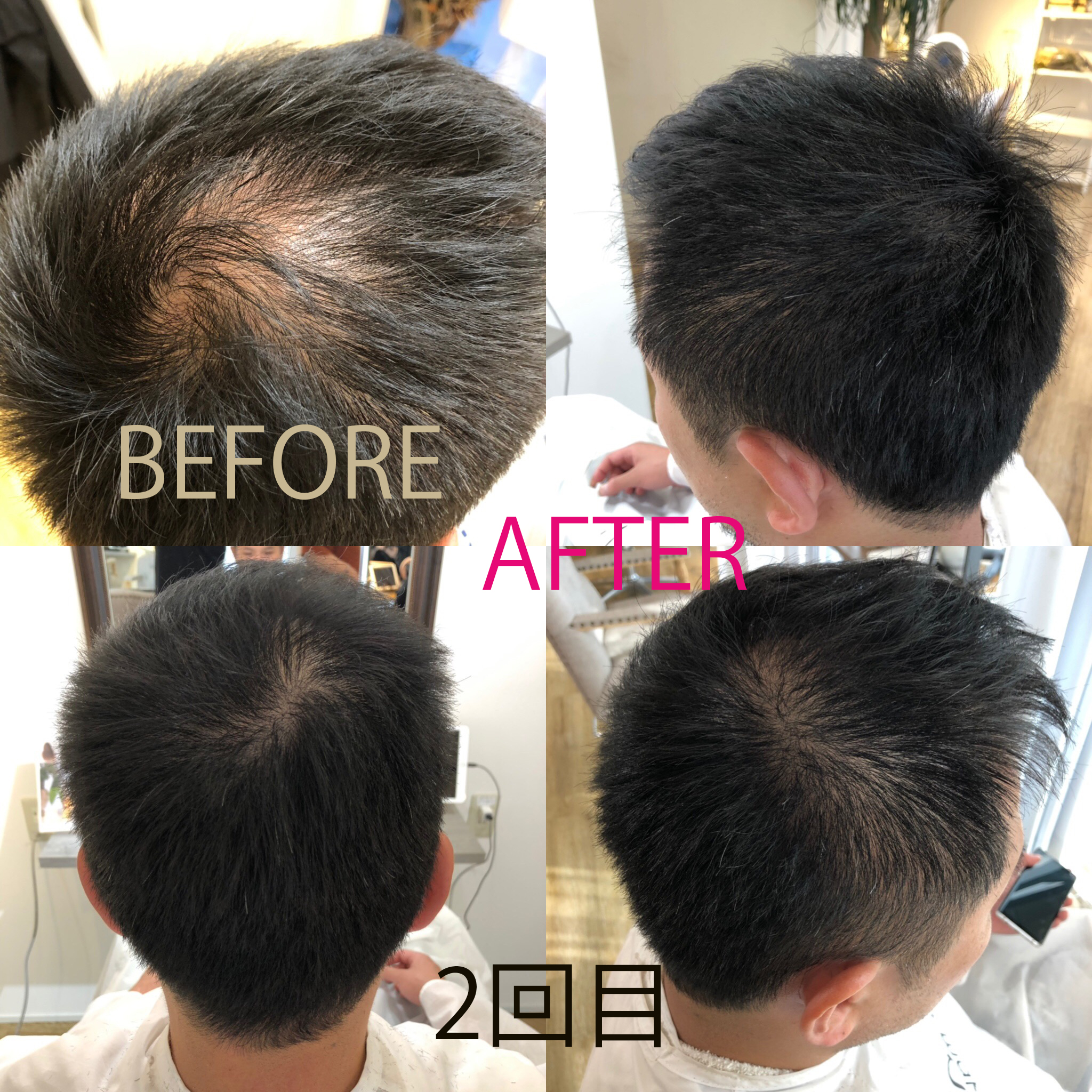 発毛も可能にしたヒト幹細胞培養液